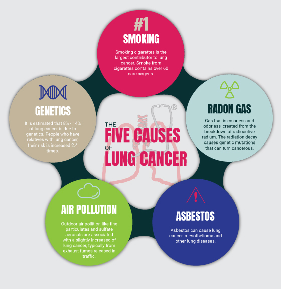 The Five Causes of Lung Cancer